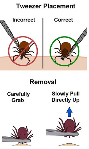 Removal of Ticks
